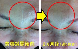 美容鍼の効果2